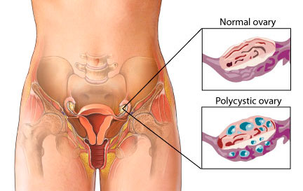 Normal ovary vs. polycystic ovary from womenshealth.gov