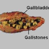 Is the gallbladder cleanse safe for gallbladder sludge and stones?