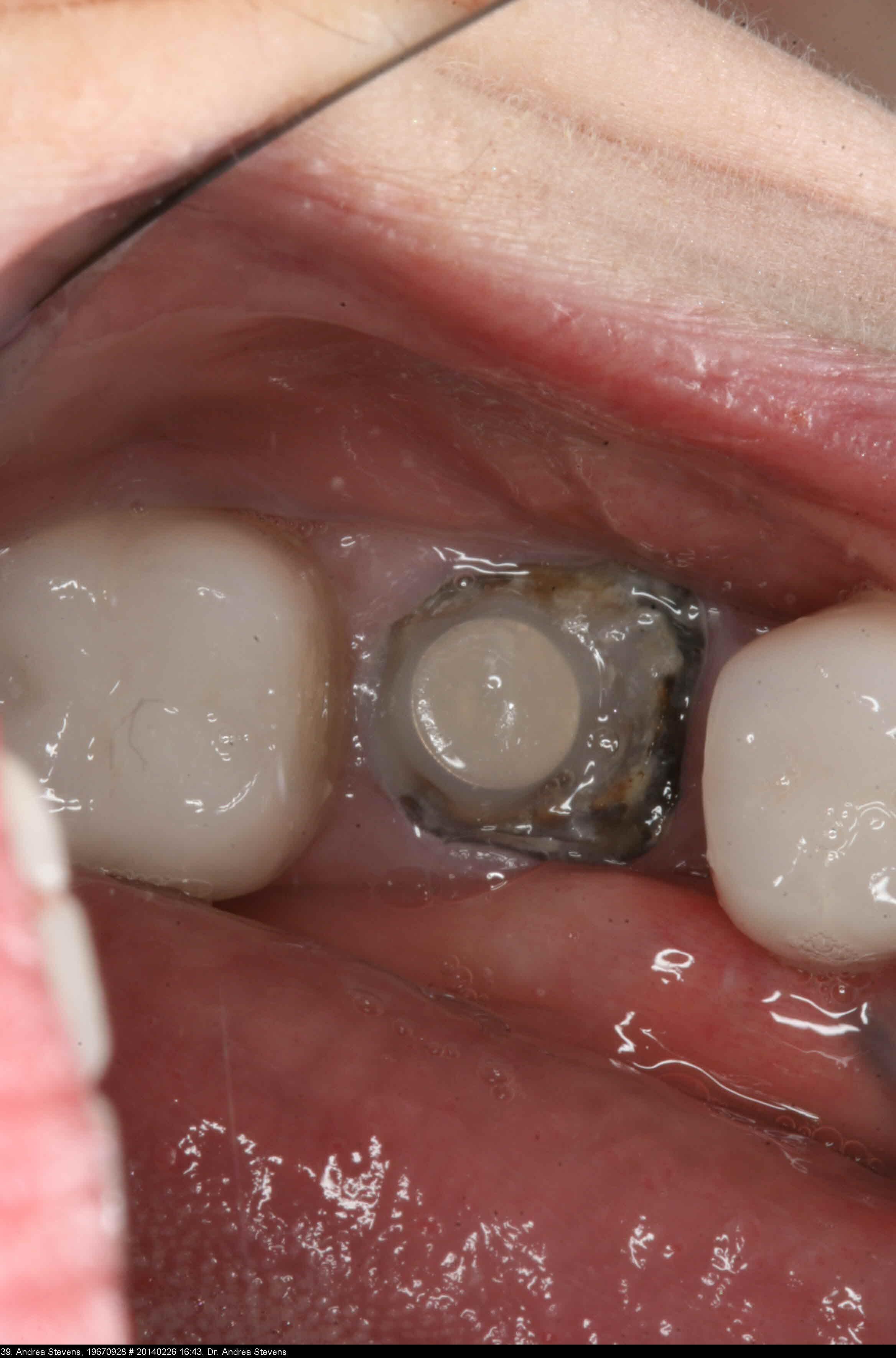 Black Cracks In Teeth : black, cracks, teeth, Should, Tooth, Broken, Gumline, Fixed?