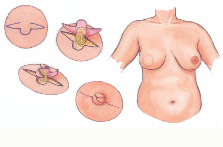 Nipple Reconstruction Diagram