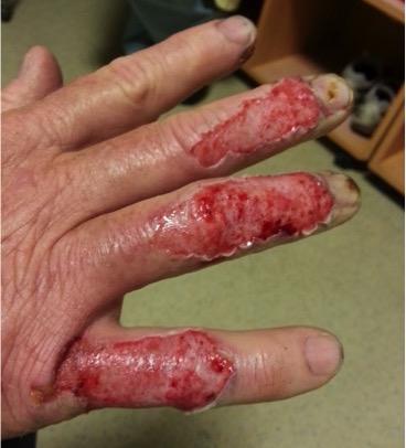 New Burn on Hands Image