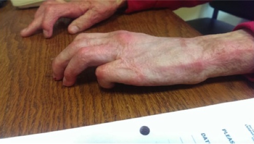 Secondary Burn Hand Image