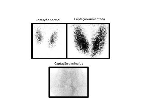 Cintilografias de tireoide demostrando captação normal, aumentada e diminuída