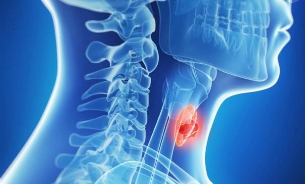 Revisitando o risco de malignidade para nódulos de tireoide