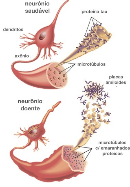 Doenca Alzheirmer neuropatologia