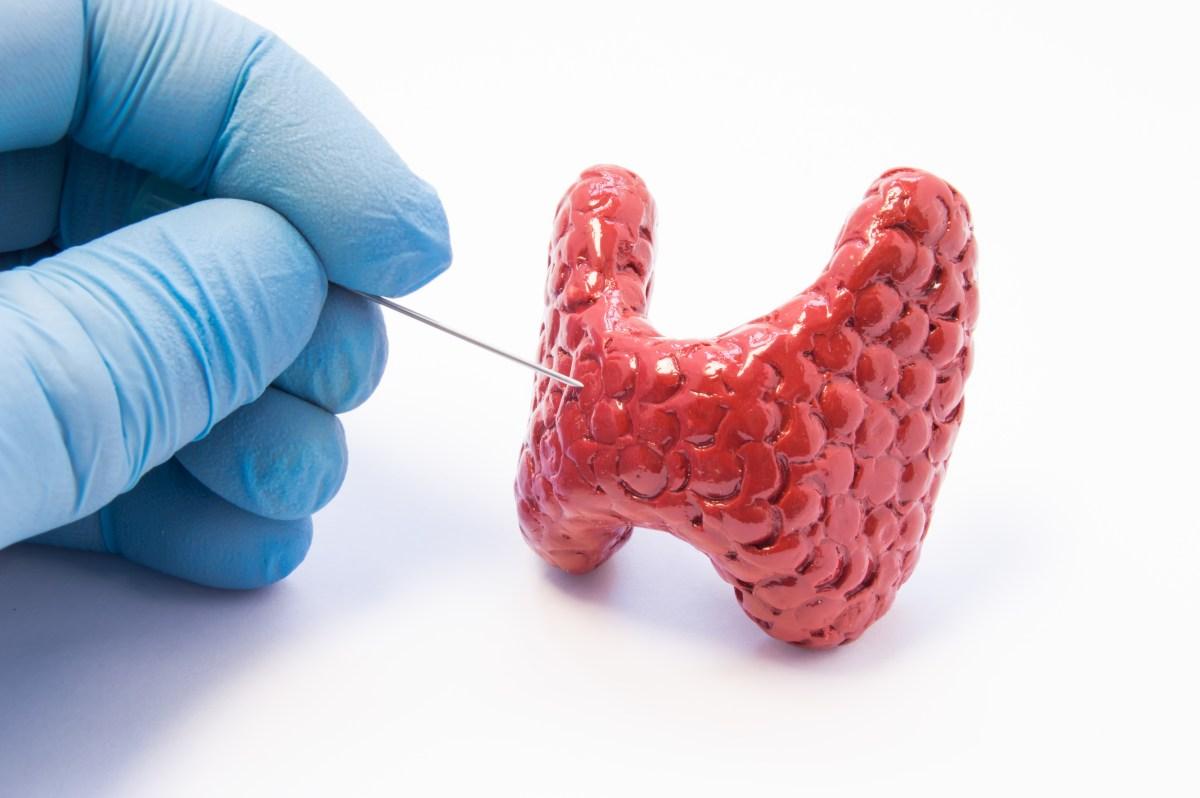 Recomendações para punção de nódulos de tireoide (ATA e TI-RADS)