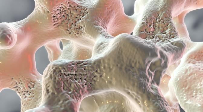 Raquitismo e Osteomalácia