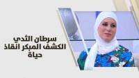 د. رشا الشيخ علي – سرطان الثدي .. الكشف المبكر انقاذ حياة – طب وصحة