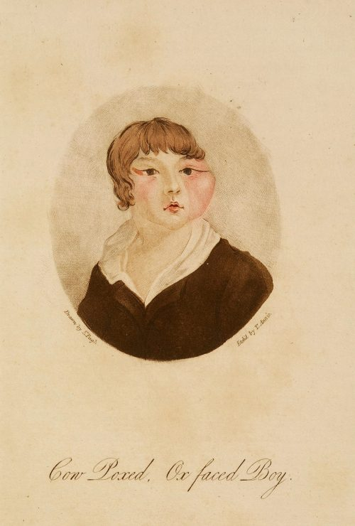 E. Pugh and T. Annie, Cow Poxed, Ox Faced Boy, (1805), Courtesy of the Wellcome Collection
