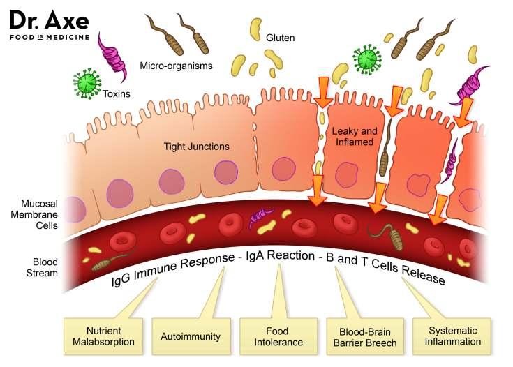 Causes of leaky gut diagram