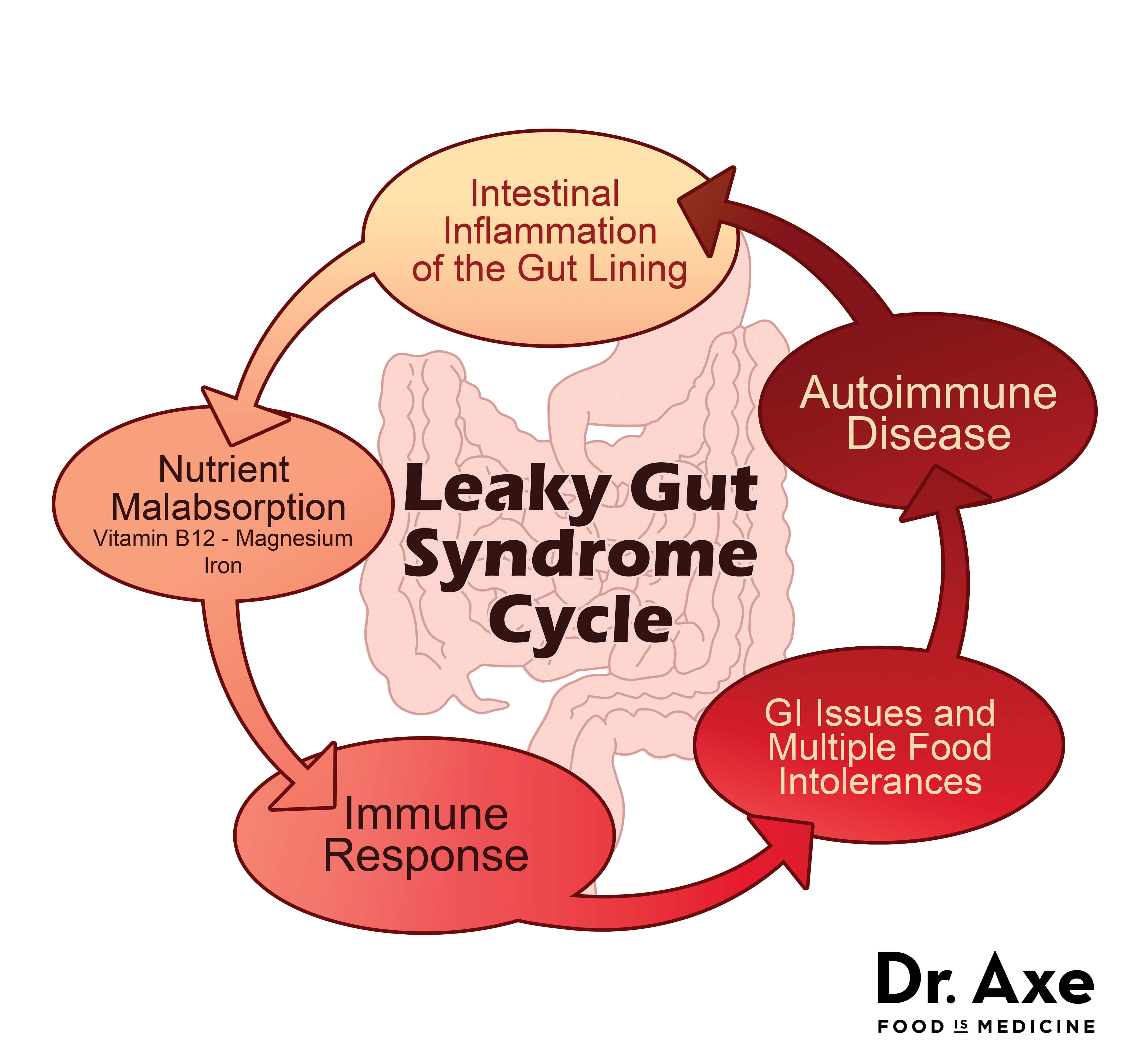 Heal Leaky Gut Syndrome & Autoimmune Disease - Dr. Axe