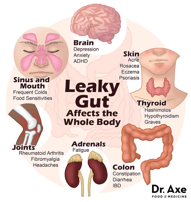 leaky gut syndrome symptoms diagram