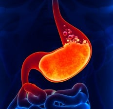 Acid reflux, SIBO symptoms, Heartburn