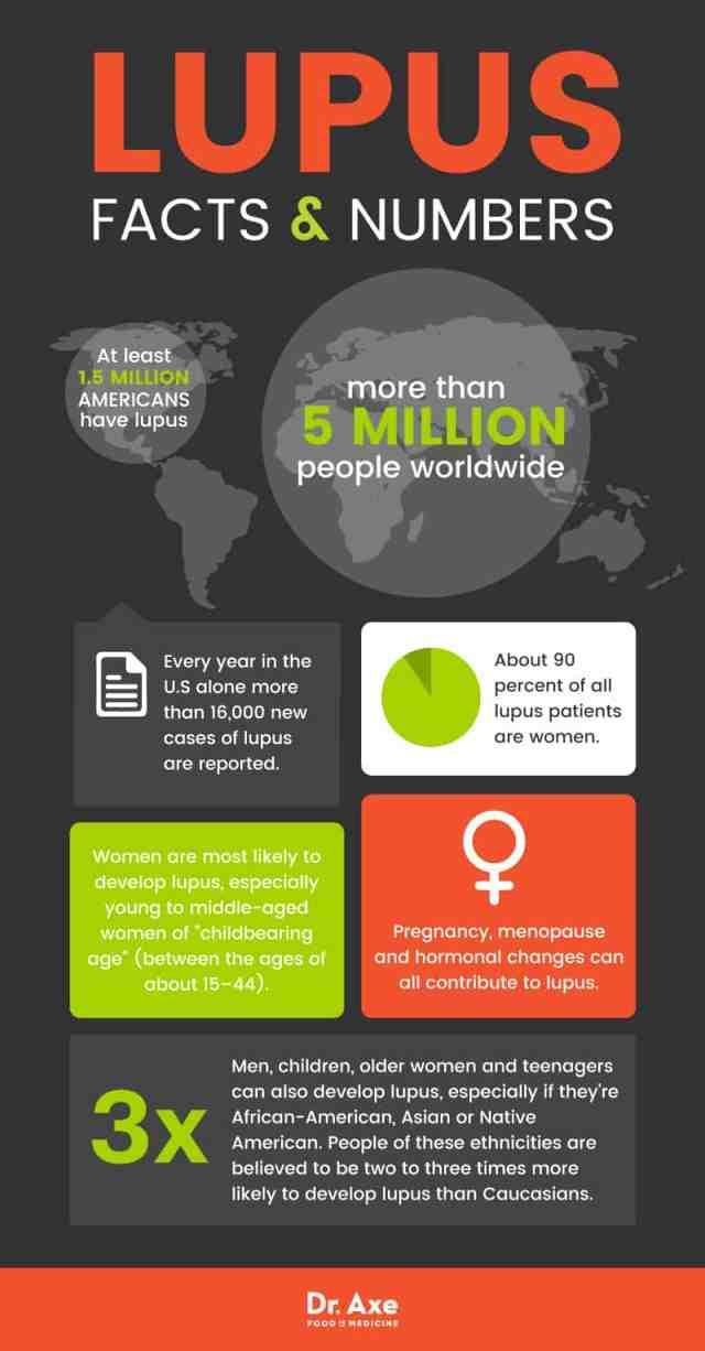 Lupus symptoms: lupus facts