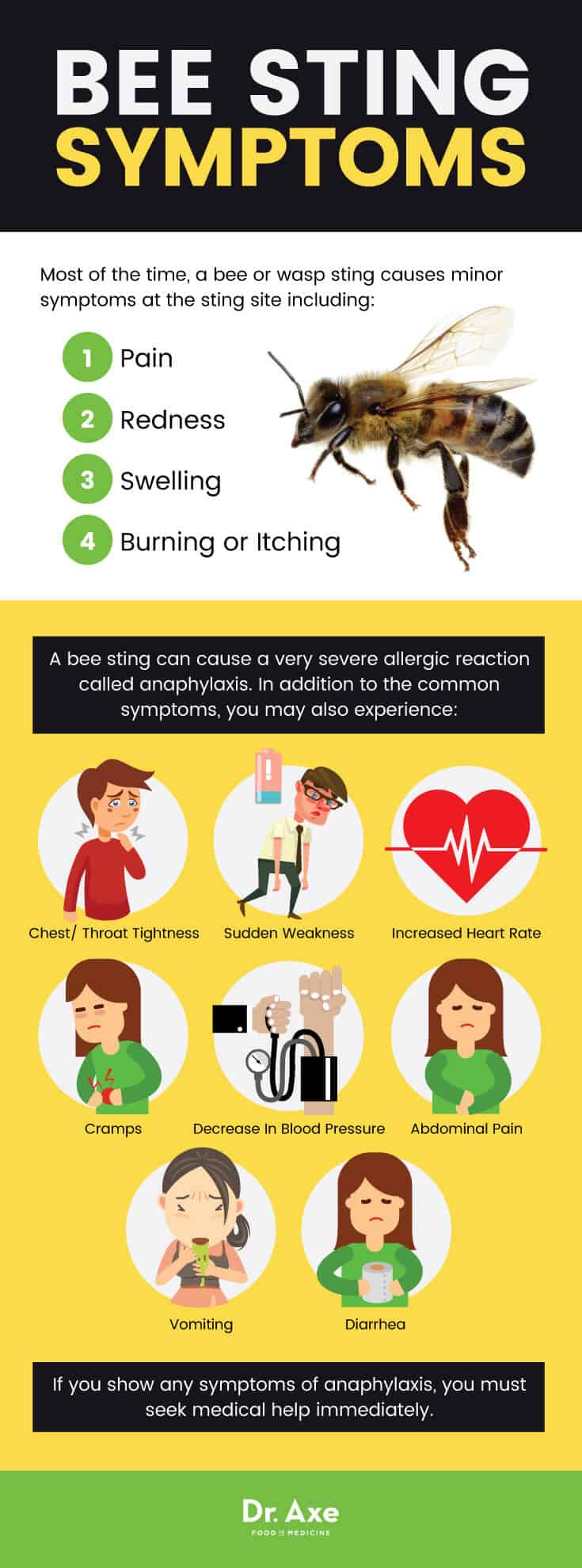 Bee sting treatment: bee sting symptoms - Dr. Axe