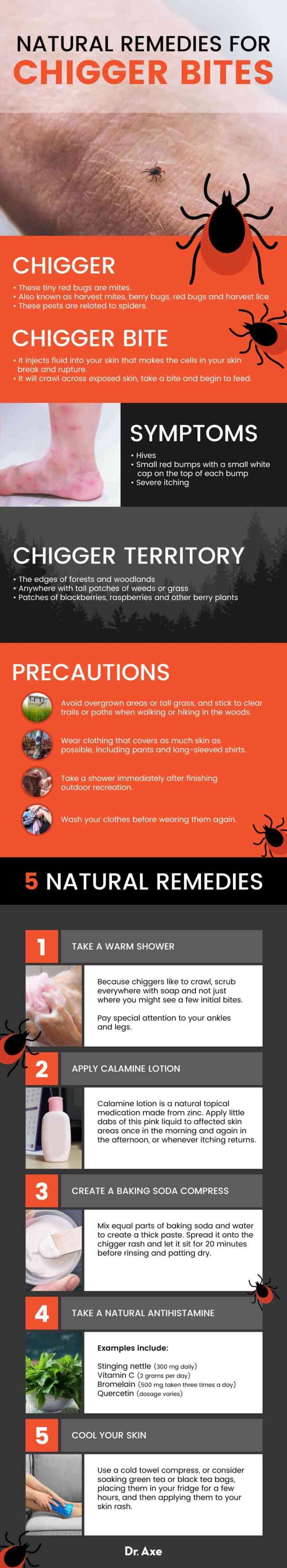 Chigger bites remedies