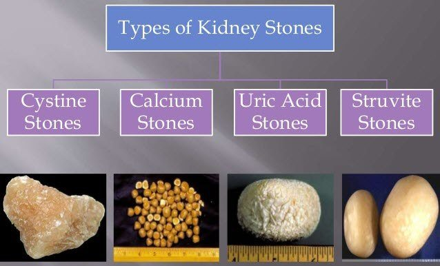 Type of Kidney Stone (Gurde ki Pathri ke Prakar) in hindi