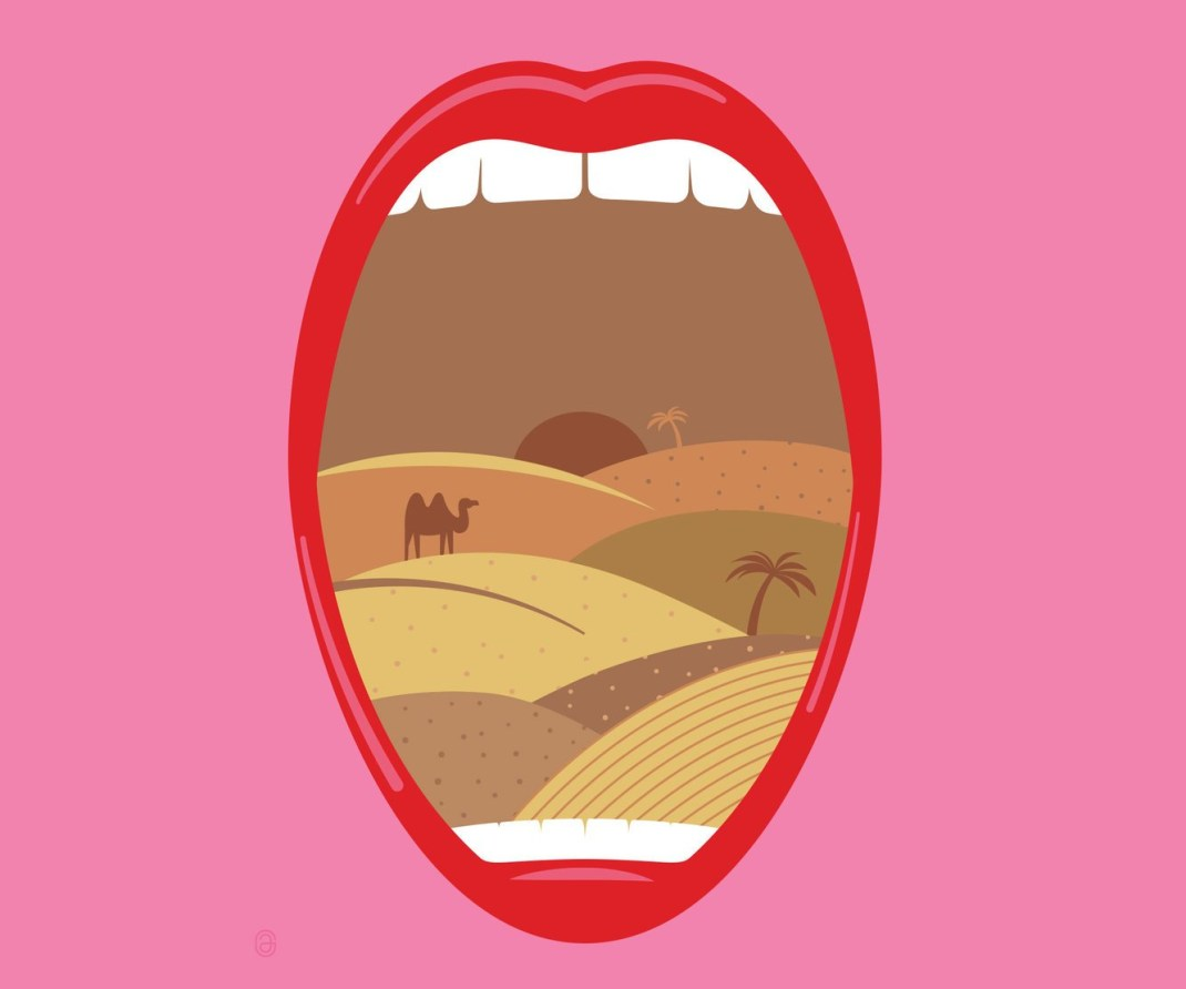 Dry mouth illustration for Sjogren's syndrome.