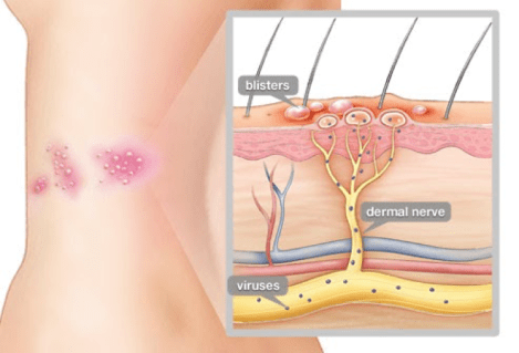 Illustration showing post-herpetic reactivation of virus, causing skin blistering and neuropathic pain.