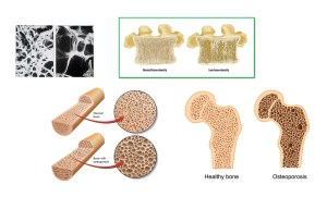 A bone density test can help prevent osteoporosis
