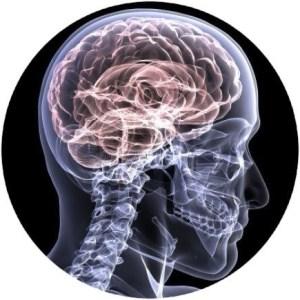 Parkinson's Disease Scottsdale Functional Neurology