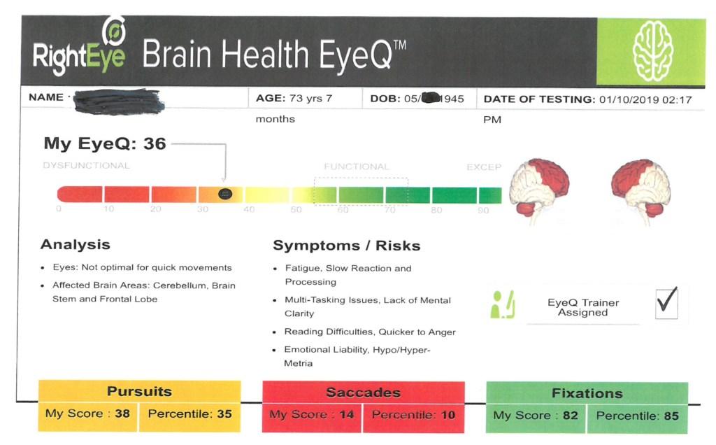 Eye exercises for headaches