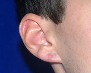 ear reshaping