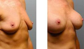 Before-and-After-Breast-Augmentation