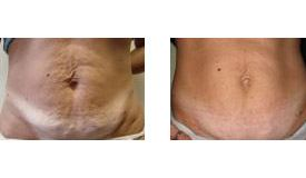 Before-and-After-Cellulite-Treatment