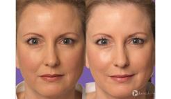 Before-and-After-Juvederm-Filler