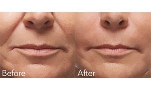 Before-and-After-Radiesse-Filler
