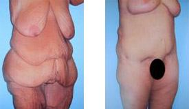Before-and-After-Tummy-Tuck-Abdominoplasty