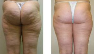 Before-and-After-Velashape