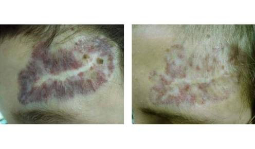 laser skin therapy before after patient