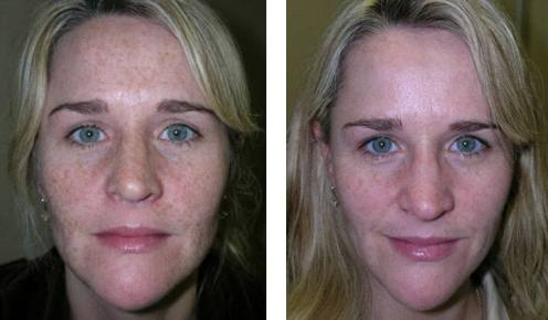 Dr Chernoff Indianapolis Refirme Before After