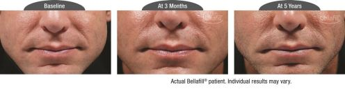 nasolabial b&a_Patient 3