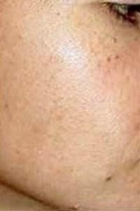 Salt Facials