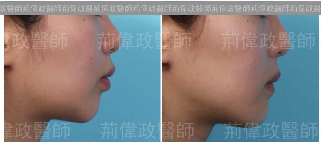 下巴手術效果展示-下巴整形推薦-2