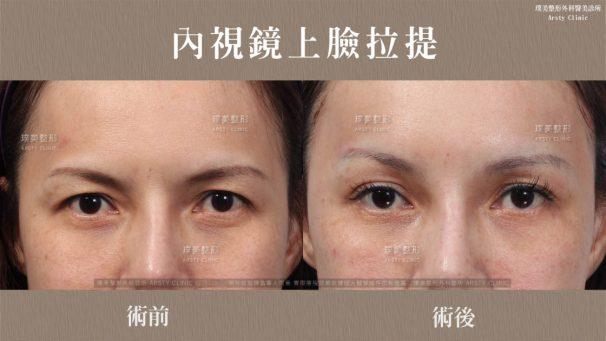 -內視鏡提眉-拉皮手術-眼神改善-1120x630