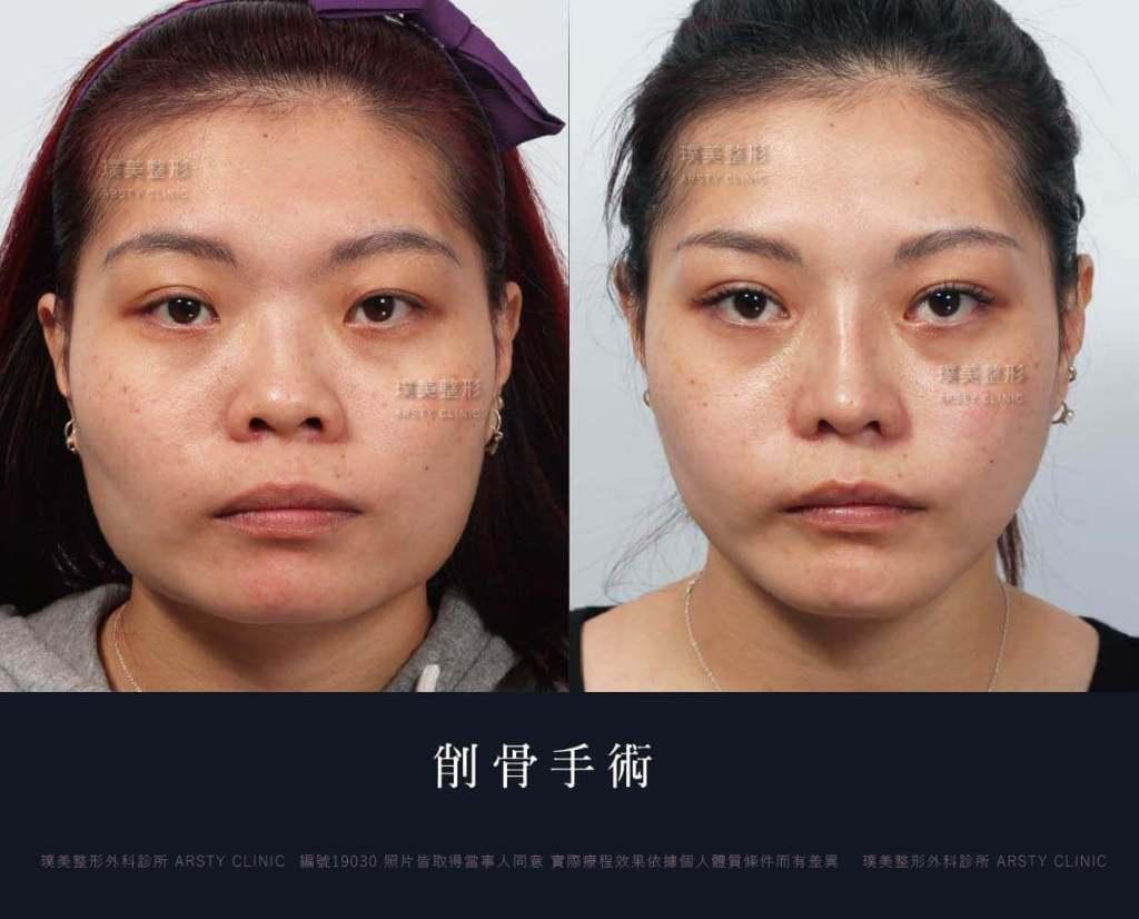 一站式臉骨美型削骨案例對照圖