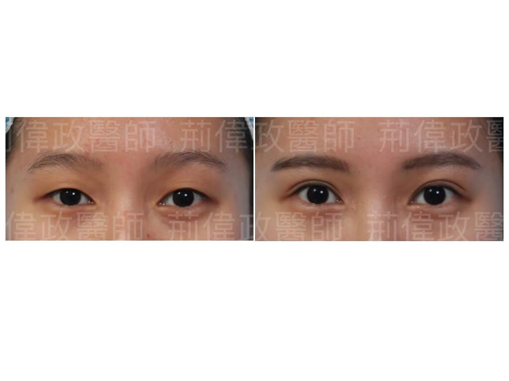 眼整形、眼整形權威、雙眼皮手術費用、雙眼皮手術推薦、雙眼皮自然形成、雙眼皮ptt、割雙眼皮推薦醫師、台北雙眼皮權威、台北雙眼皮手術推薦.jpeg