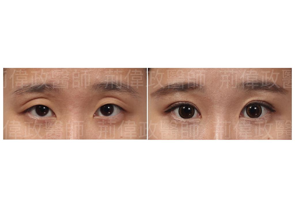 荊醫師、極緻、眼整形權威、大小眼、整形外科醫師推薦、雙眼皮ptt、割雙眼皮推薦醫師、雙眼皮手術推薦、雙眼皮自然形成.jpeg