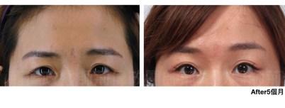 荊偉政、直接提眉、提眉手術ptt、微創拉皮、3d微創拉皮.jpeg