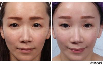 提眉手術價格、提眉手術費用、提眉手術ptt、提眉ptt.jpeg