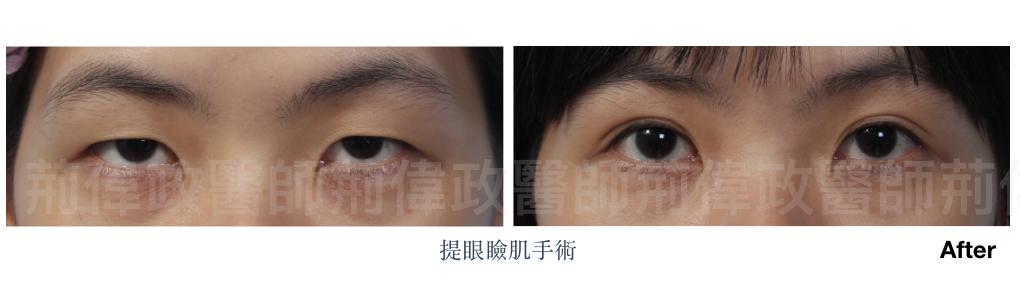 割雙眼皮、提眼肌ptt、提眼肌醫師、提眼肌台北、極緻醫美、.jpeg