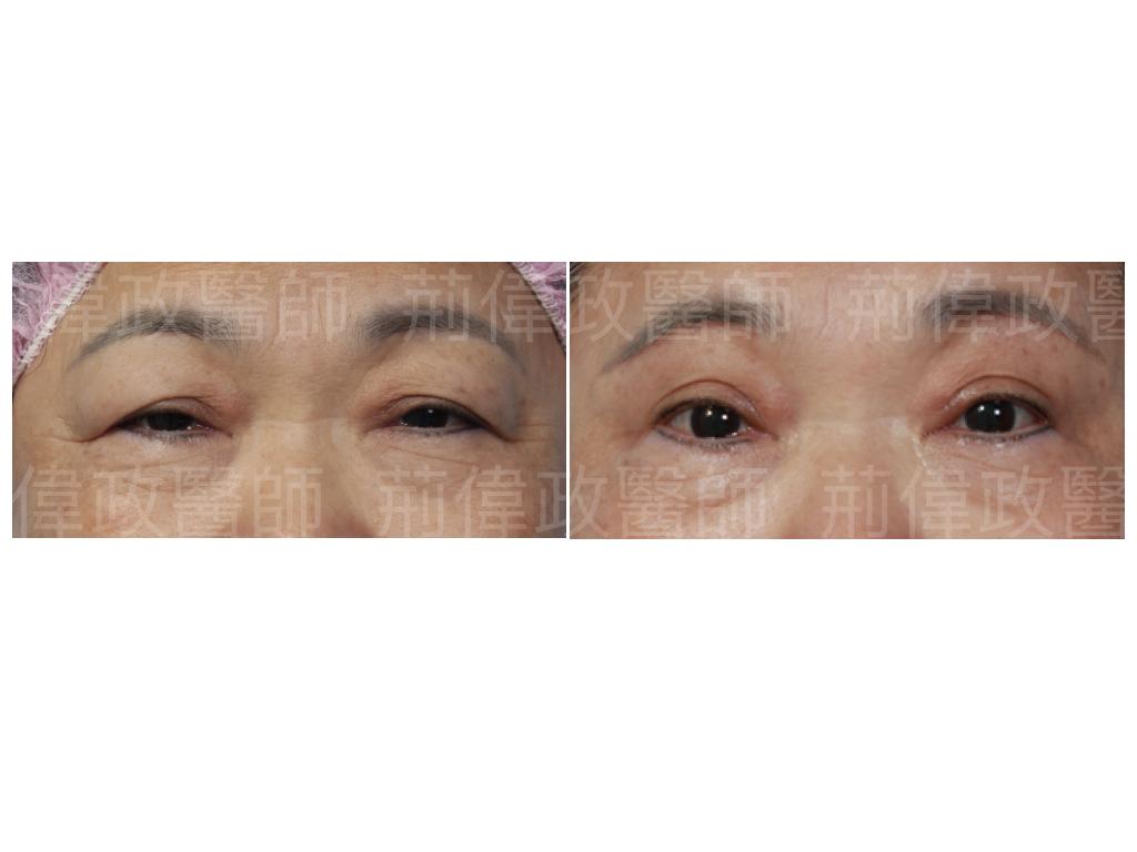 提眼瞼肌、眼瞼肌無力、眼整形推薦、提眼肌手術復原、提眼肌無力推薦、提眼肌失敗、提眼肌ptt、提眼肌醫師、提眼肌台北.jpeg