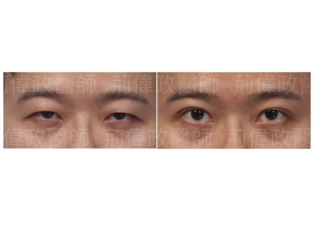 提眼瞼肌、眼瞼肌無力、極緻、眼整形權威、割雙眼皮、割雙眼皮恢復期多久、提眼肌ptt、提眼肌醫師、提眼肌台北.jpeg