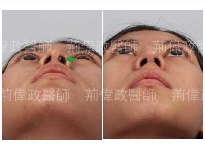 隆鼻失敗之後結構式隆鼻手術重修,矽膠鼻模穿出鼻頭(L型矽膠隆鼻)