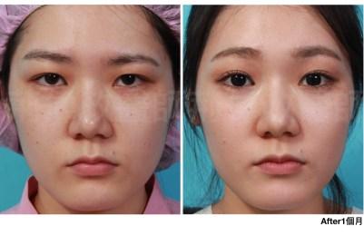 荊醫師、初老皮膚、抗老保養、抗老化方法、抗老ptt.jpeg