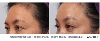 提眉失敗、提眉手術價格、提眉手術費用、提眉手術ptt.jpeg